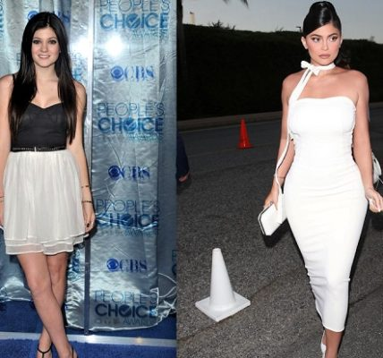 Kylie Jenner 2010 vs Kylie Jenner 2019, plastic surgeons belive she has been under the knife