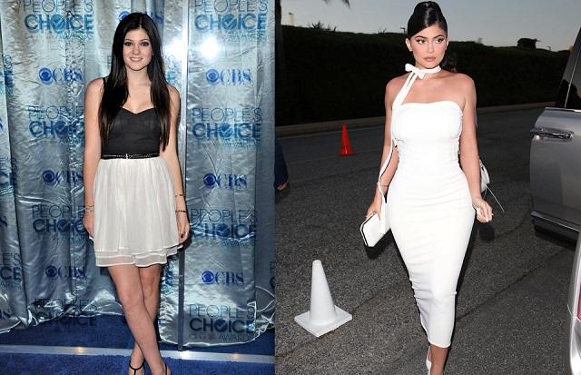 Kylie Jenner 2010 vs Kylie Jenner 2019, plastic surgeons belive she has been under the knife